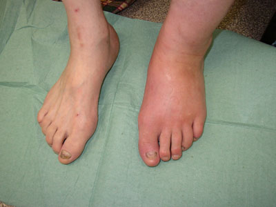 Диабет боль в суставах рук и ног